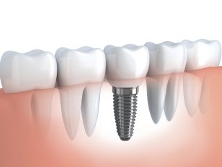 https://www.broadwaydentalstudio.co.uk/wp-content/uploads/2015/11/Dental-Implant-320x240.jpg