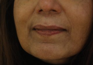 before-dermal-fillers-for-marionette-lines-20-20