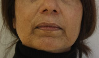 before-dermal-fillers-for-marionette-lines-20