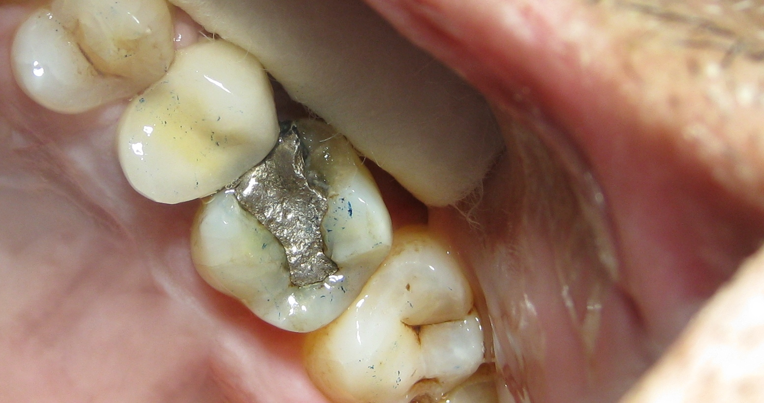 BEFORE - Broken Amalgam 'Silver' Filling