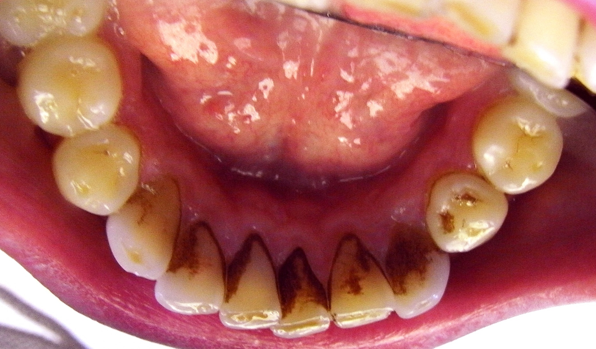 Gross Staining on Lower Front Teeth